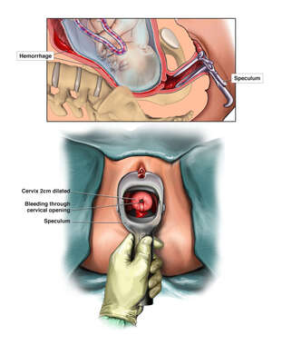 Speculum Examination with Visualization of Source of Visible Vaginal Bleeding