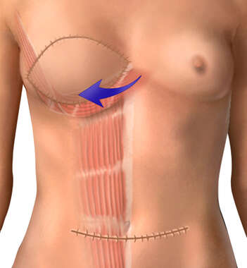 Abdominal Muscle Flap Graft: Breast Reconstruction