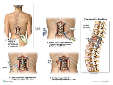 Posterior Spinal Fusion T11 to L1