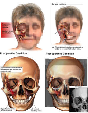 Post-accident Facial Fractures with Initial Surgical Fixation