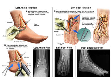 Open Reduction and Internal Fixation of Left Ankle and Foot