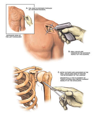 Surgical Repairs of the Shoulder