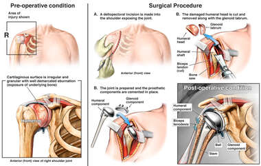 Right Total Shoulder Arthroplasty and Biceps Tendonitis