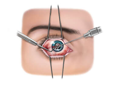 Irrigation of Anterior Chamber of the Eye