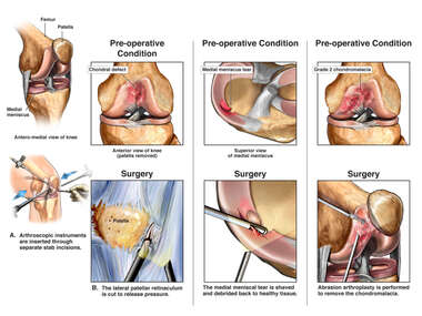 Surgical Procedures on the Left Knee