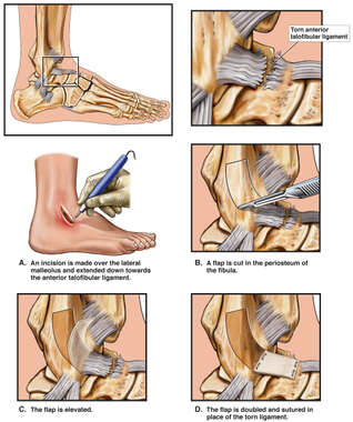 Talofibular Ligament Repair