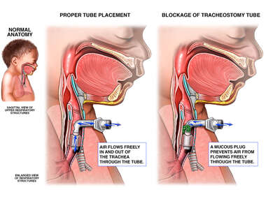 Tracheostomy with Mucous Plug Blockage