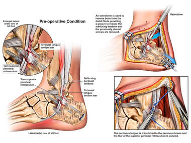 Surgical Repair of Subluxing Tendons