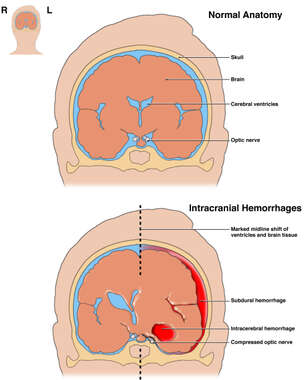 Comparison of Normal Anatomy with Intracranial Hemorrhages