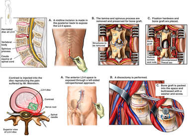 Lumbar Disc Herniation with Surgical Repair