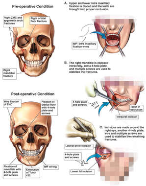 Multiple Facial Fractures with Surgical Repairs