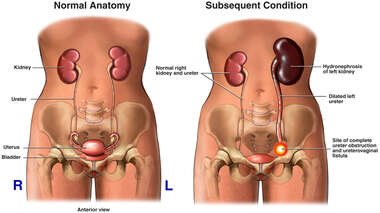 Post-operative Obstruction of the Ureter with Subsequent Kidney Damage