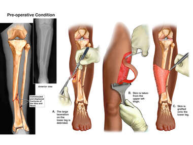 exh82393aLeft Lower Leg Injuries with Skin Grafting