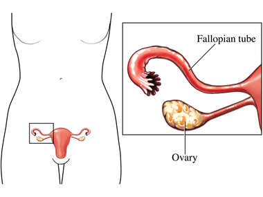 Ovary and Fallopian Tube