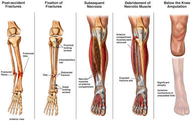 Progression of Fractured Right Tibia with Subsequent Below the Knee Amputation