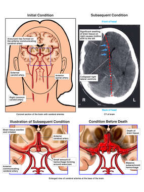 Progression of Cerebral Aneurysm