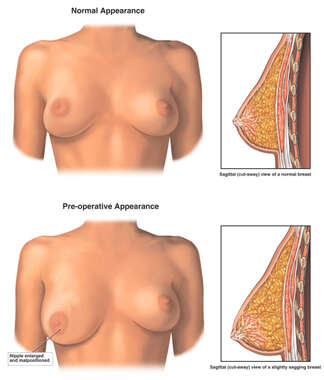 Normal vs. Pre-operative Anatomy of the Right Breast