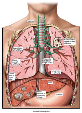 Lung Cancer with Metastasis to Lymph Nodes and Liver