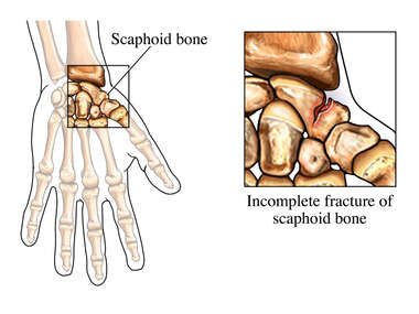 Incomplete Fracture of the Scaphoid Bone