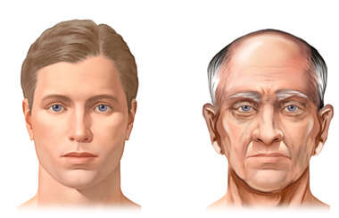 Age-Related Facial Changes