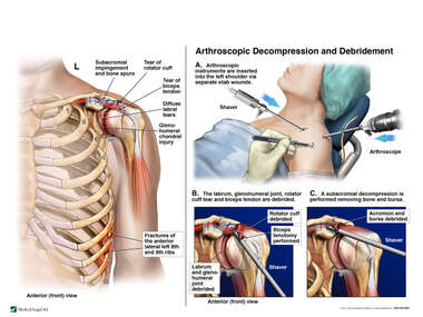 Left Chest and Shoulder Injuries with Arthroscopic Repairs