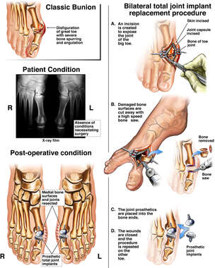 Bunion: Joint Implant Replacement