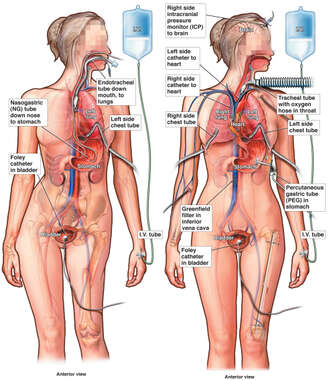 Placement of Various Tubes and Catheters