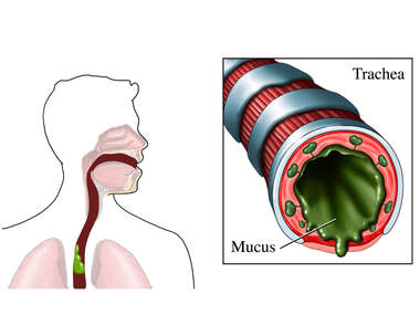 Inflammatory Response in Airway