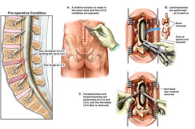 Lumbar Disc Injuries and Spinal Stenosis with Surgical Decompression