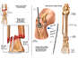 Right Leg Injuries with Surgical Fixation