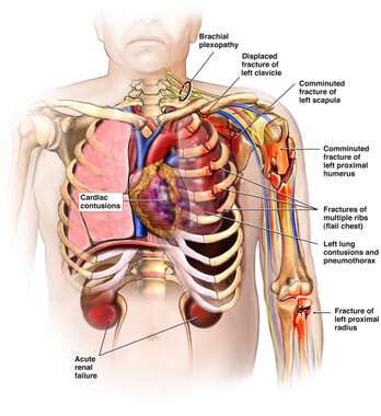 Male Torso with Post-accident Injuries to the Left Shoulder, Arm, Heart, Thorax and Kidneys