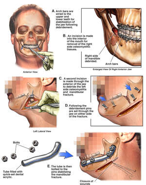 Initial Surgical Repairs of the Mandible