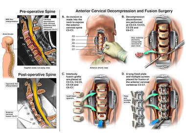 Cervical Spine Injuries with Fusion