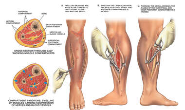 Compartment Syndrome of Left Leg with Surgical Fasciotomies