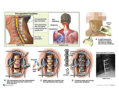 Cervical Spine Injuries with Triple Level Anterior Discectomy and Fusion Surgery
