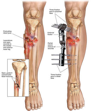 Left Lower Leg Fractures with Application of External Fixators