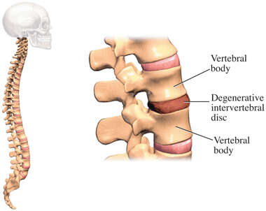 Lumbar Degenerative Disc