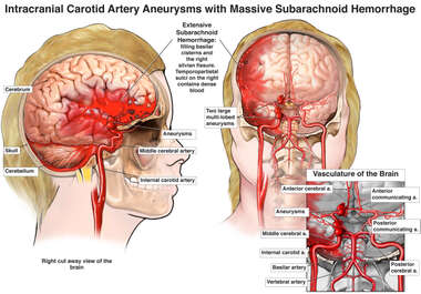 Intracranial Carotid Artery Aneurysms with Massive Subarachnoid Hemorrhage
