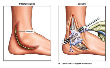 Infected Wound and Surgery