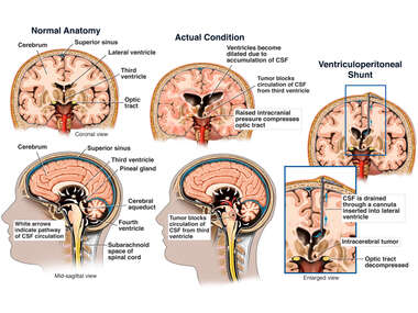 Brain Surgery - Intracerebral Tumor with Blockage of CSF Circulation