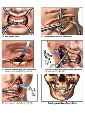 Surgical Procedure on Facial Fractures