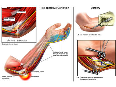 Cubital Tunnel Syndrome with Surgical Repair