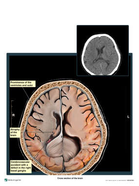 CT Evidence of Right Middle Cerebral Artery Cerebrovascular Accident