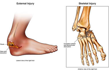 Compound Open Fracture Dislocation of the Right Ankle