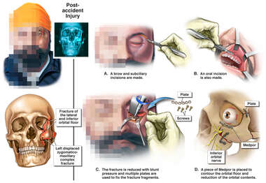 Left Side Facial Fractures with Surgical Fixation