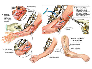 Right Arm Vascular Injuries with Surgical Repair