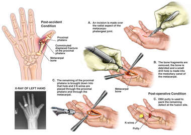 Left Thumb Fracture with Surgical Fusion