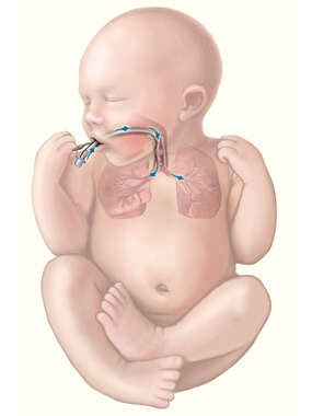 Endotracheal-Intubation of an Infant