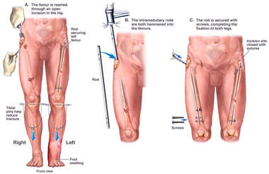 Surgical Repair of Injuries to the Legs