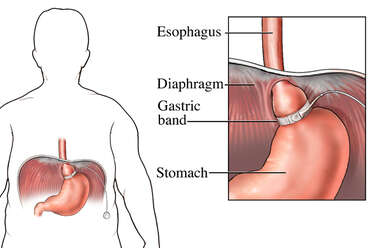 Obesity Treatment: Gastric Band Surgery